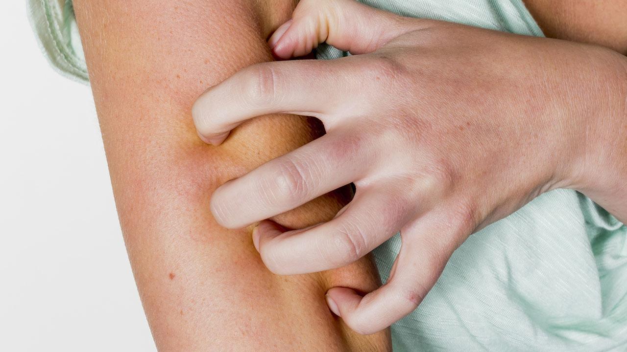 Hausmittel gegen Insektenstiche / Frau gratzt sich den Arm