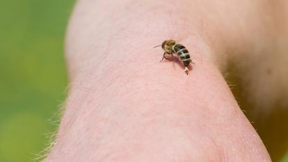 Hausmittel gegen Insektenstiche