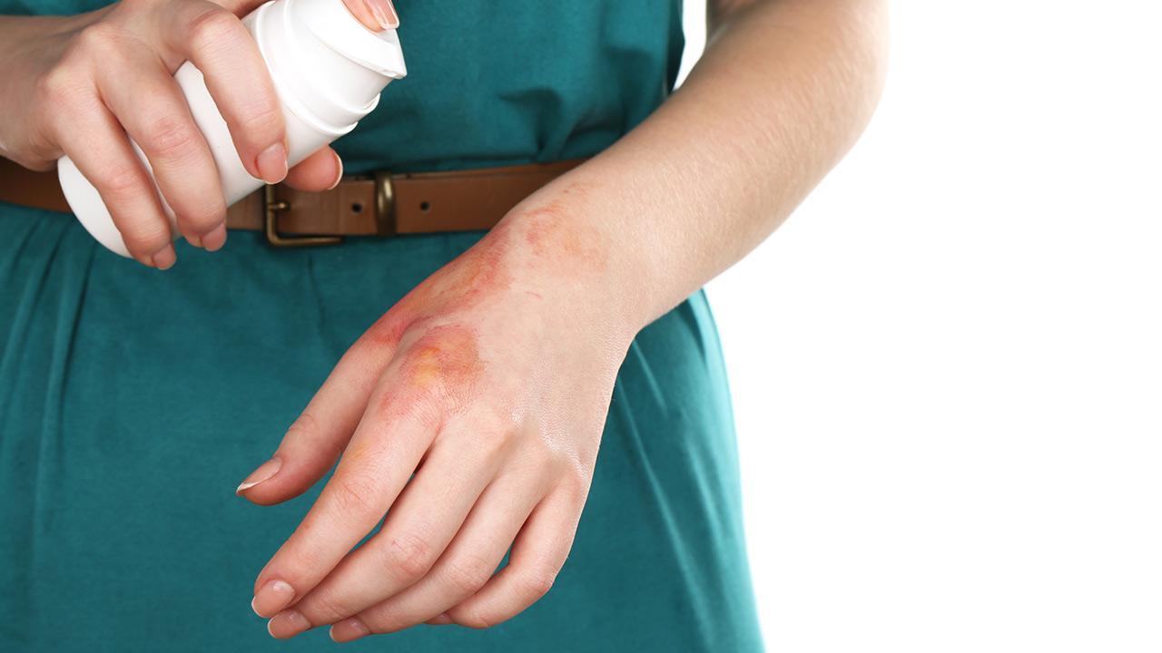 Hausmittel gegen Brandverletzungen / Frau sprüht ein Mittel auf ihre Brandverletzung